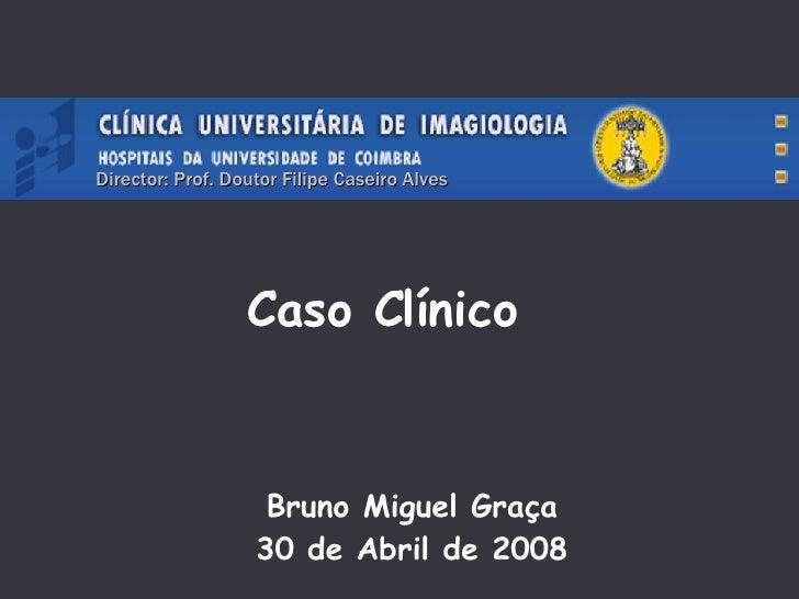 Caso Clínico Bruno Miguel Graça 30 de Abril de 2008 Director: Prof. Doutor Filipe Caseiro Alves