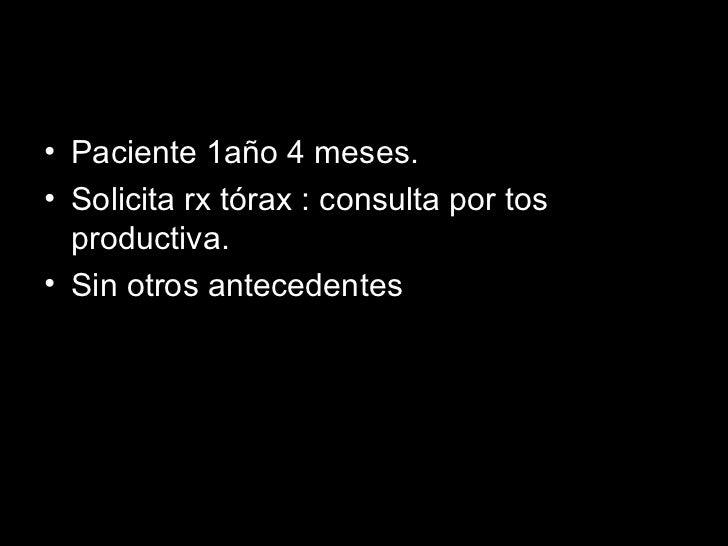 <ul><li>Paciente 1año 4 meses. </li></ul><ul><li>Solicita rx tórax : consulta por tos productiva. </li></ul><ul><li>Sin ot...
