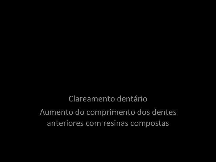 Reabilitação Estética Anterior Clareamento dentário Aumento do comprimento dos dentes anteriores com resinas compostas