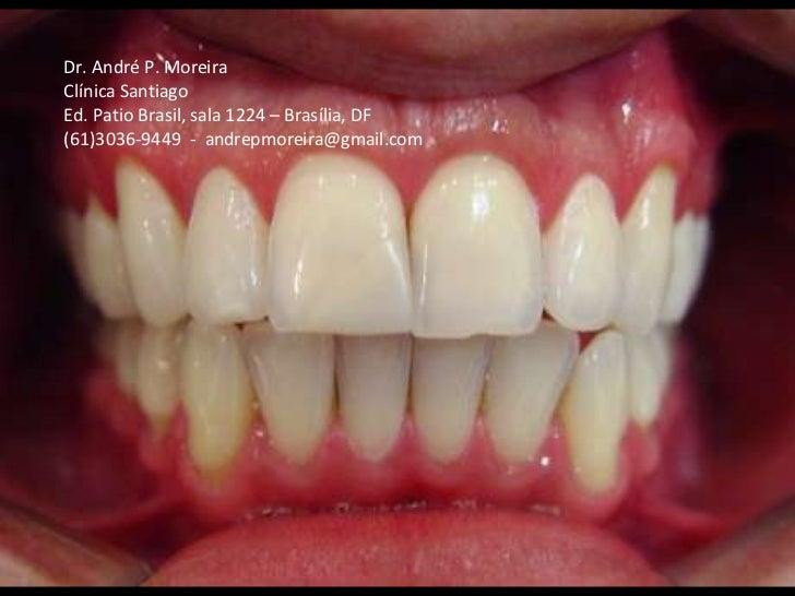 Dr. André P. Moreira Clínica Santiago Ed. Patio Brasil, sala 1224 – Brasília, DF (61)3036-9449  -  [email_address]