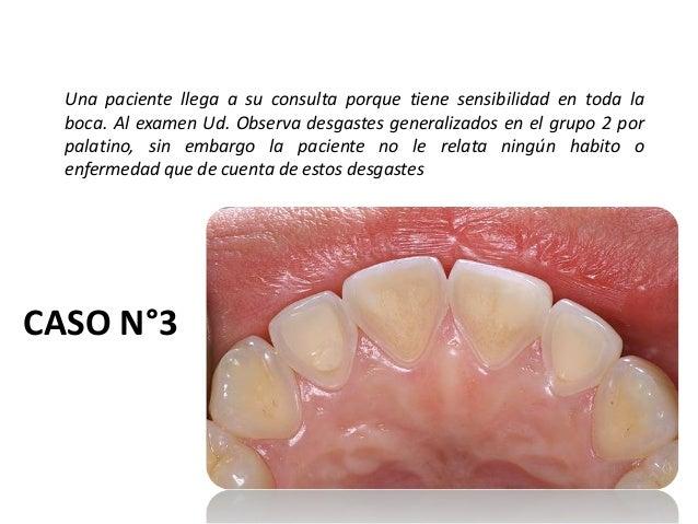 CASO N°3 Una paciente llega a su consulta porque tiene sensibilidad en toda la boca. Al examen Ud. Observa desgastes gener...