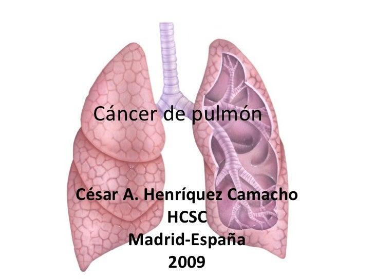 César A. Henríquez Camacho HCSC Madrid-España 2009 Cáncer de pulmón