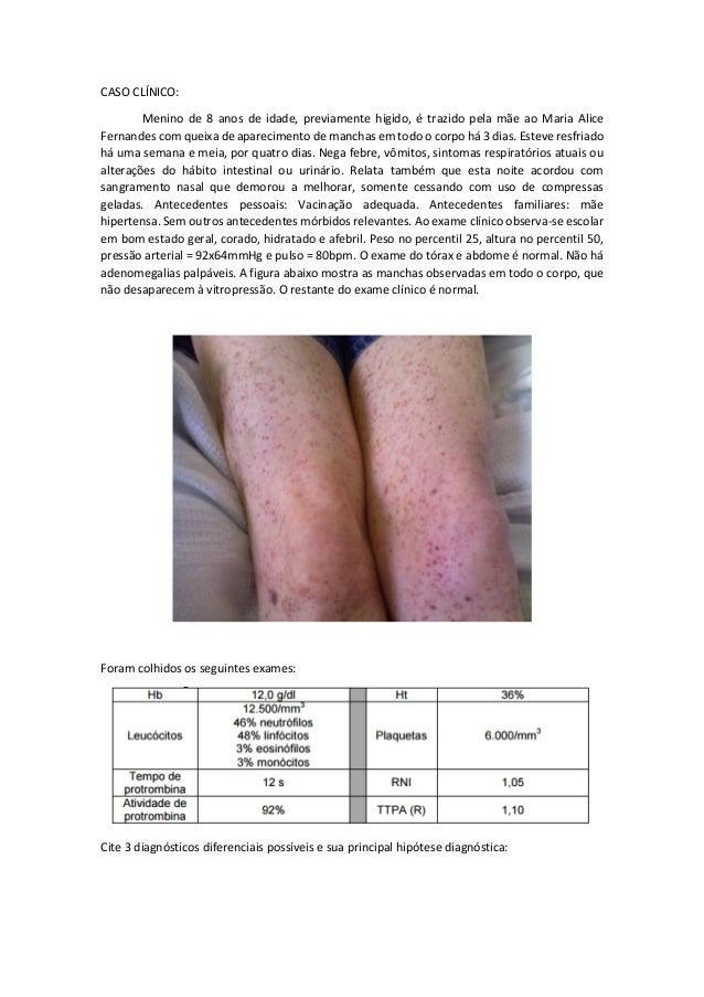 CASO CLÍNICO: Menino de 8 anos de idade, previamente hígido, é trazido pela mãe ao Maria Alice Fernandes com queixa de apa...
