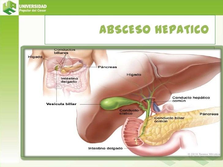 ABSCESO HEPATICO <br />CUERPO<br />