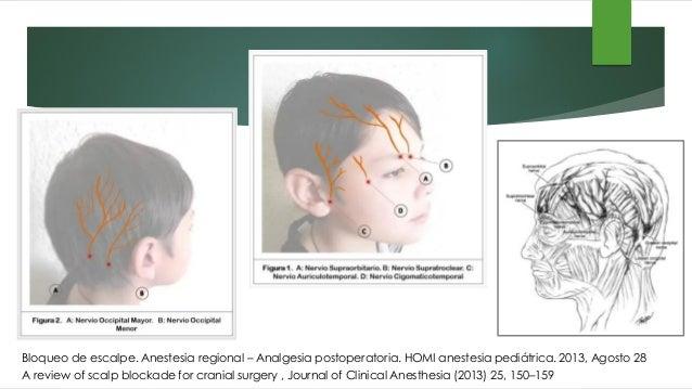 Manejo analgésico • Ingreso UCI 6/10 • 1D POP 4/10 • 2D POP Buen control - No cuantificado - • 3D POP No dolor Intensidad ...