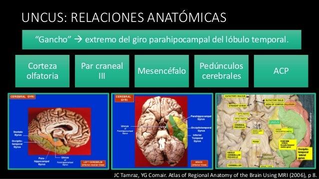 Caso clínico anestesia para tumores supratentoriales