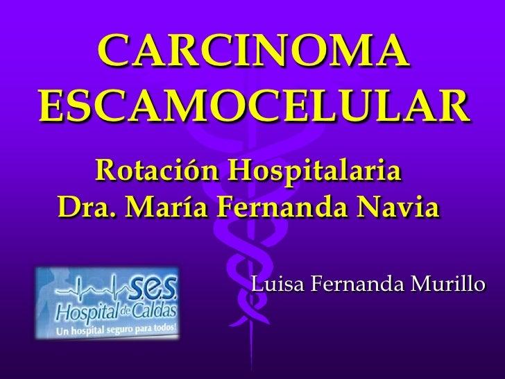 CARCINOMAESCAMOCELULAR  Rotación HospitalariaDra. María Fernanda Navia            Luisa Fernanda Murillo
