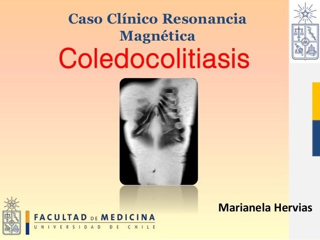 Coledocolitiasis Caso Clínico Resonancia Magnética Marianela Hervias