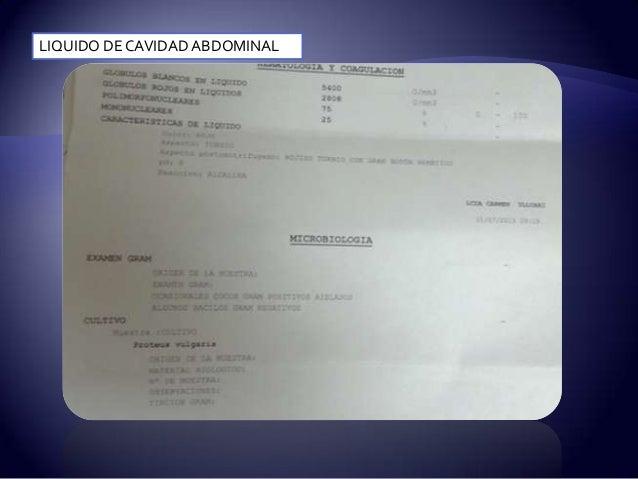 Caso clinico colelitiasis