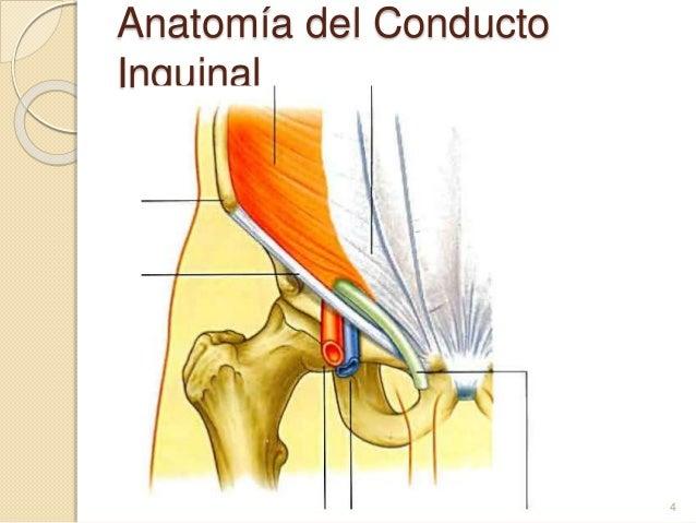Diagnóstico de hernia inguinal por TC