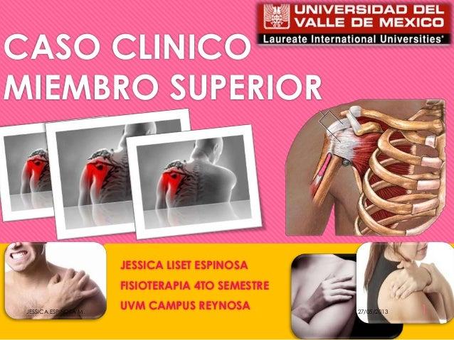 CASO CLINICOMIEMBRO SUPERIORJESSICA LISET ESPINOSAFISIOTERAPIA 4TO SEMESTREUVM CAMPUS REYNOSA 27/05/2013JESSICA ESPINOSA M...