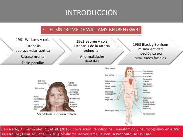 Caso Clínico Conocido Sindrome Williams Beuren
