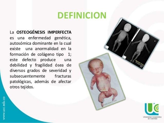 Osteogenesis imperfecta for Definicion de gastronomia pdf
