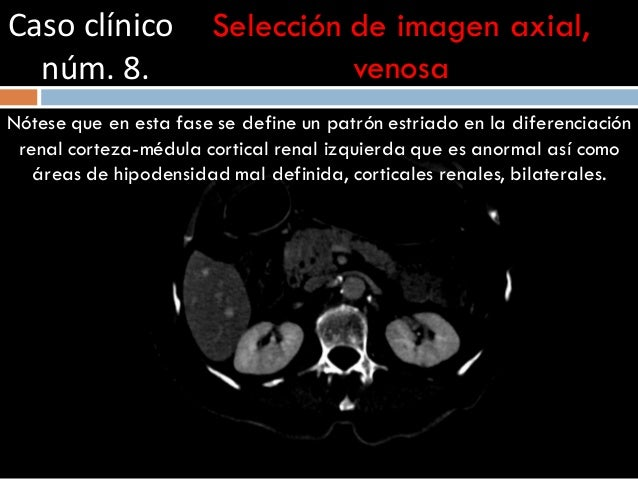Caso clínico núm. 8. Selección de imagen axial, venosa Nótese que en esta fase se define un patrón estriado en la diferenc...