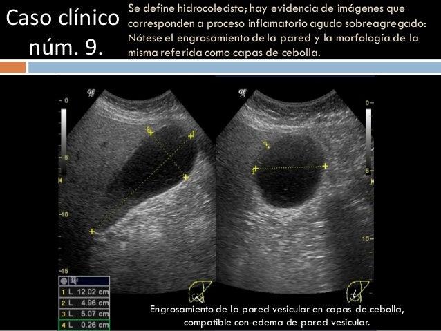 Caso clínico núm. 9. Se define hidrocolecisto; hay evidencia de imágenes que corresponden a proceso inflamatorio agudo sob...
