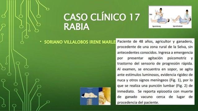 CASO CLÍNICO 17  RABIA  • SORIANO VILLALOBOS IRENE MARLENY