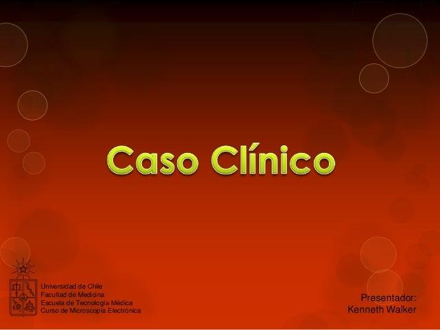 Universidad de Chile Facultad de Medicina Escuela de Tecnología Médica Curso de Microscopía Electrónica  Presentador: Kenn...