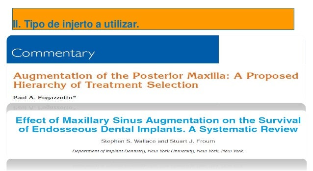 Sinus Floor Elevation Systematic Review : Caso clínico periodoncia e implantes