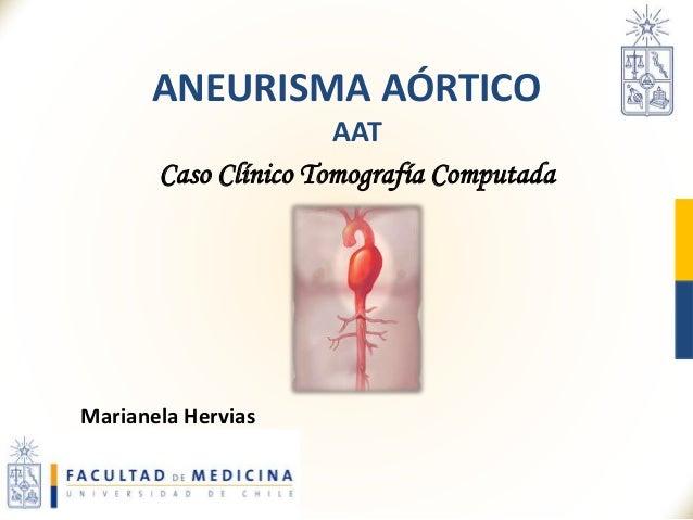 ANEURISMA AÓRTICO AAT Caso Clínico Tomografía Computada Marianela Hervias