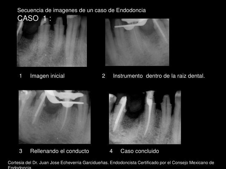 Secuencia de imagenes de un caso de Endodoncia<br />CASO  1 :<br />1     Imagen inicial<br />2     Instrumento  dentro de ...
