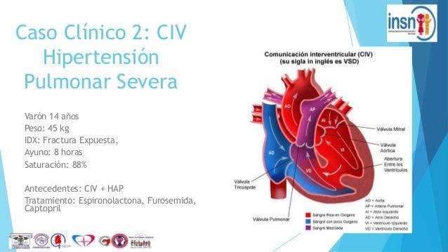 SOS: Tengo un Paciente Cardiópata v(Casos Clínicos)