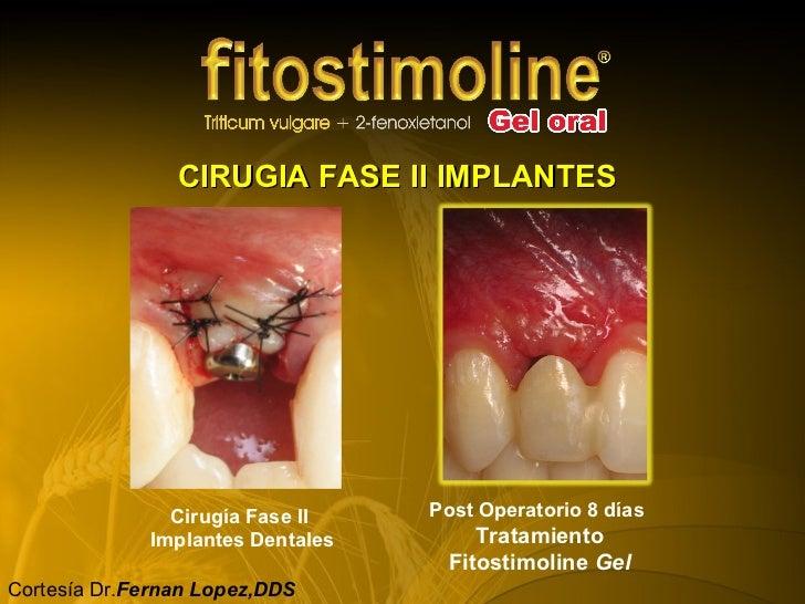 Casos Fitostimoline Odontológico