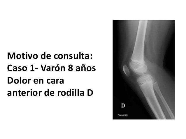 Motivo de consulta: Caso 1- Var�n 8 a�os Dolor en cara anterior de rodilla D
