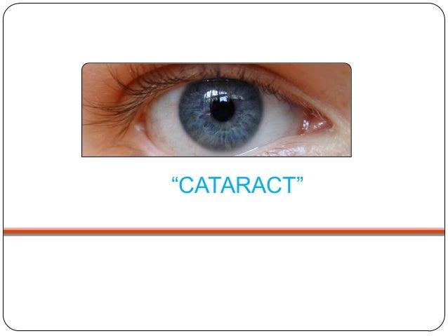 """""""CATARACT"""""""