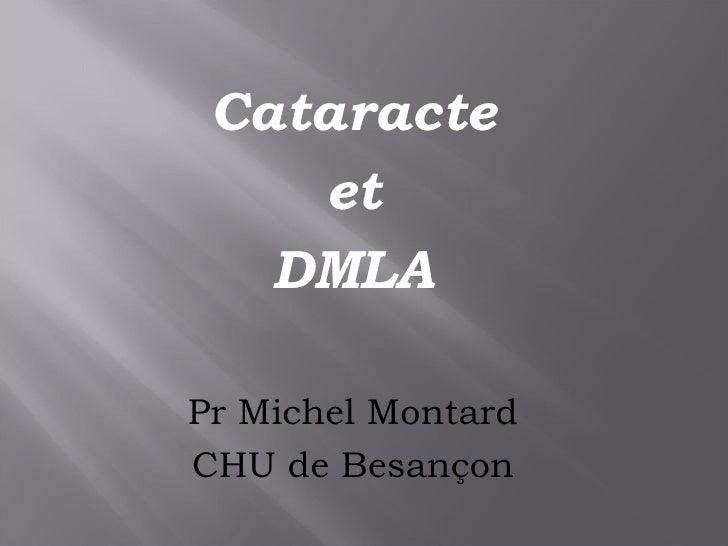 <ul><li>Cataracte </li></ul><ul><li>et </li></ul><ul><li>DMLA  </li></ul><ul><li>Pr Michel Montard </li></ul><ul><li>CHU d...