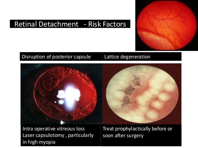 Cataract Surgery Complications For General Practitioners