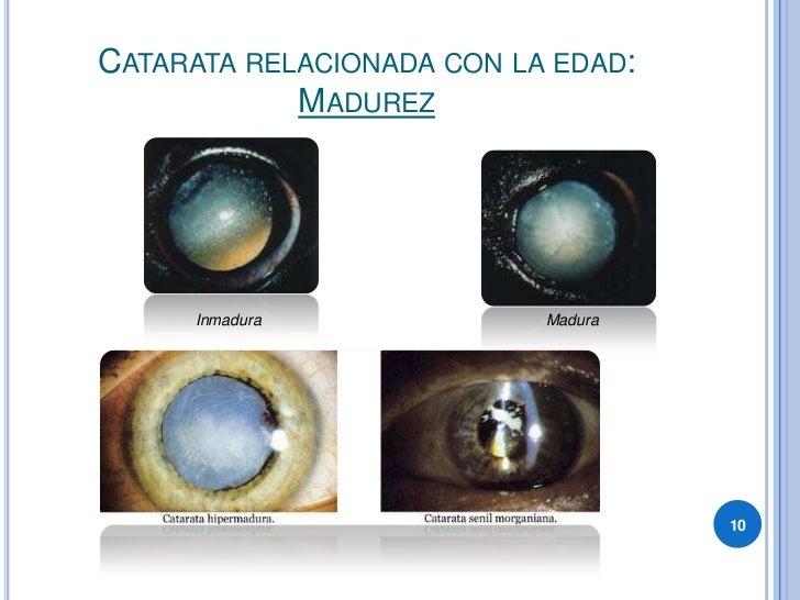 CATARATA RELACIONADA CON LA EDAD:             MADUREZ          Inmadura              Madura                               ...