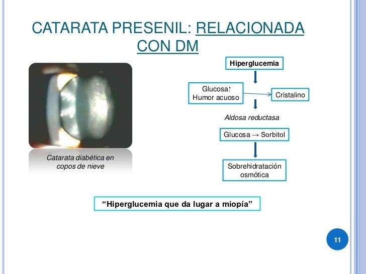 CATARATA PRESENIL: RELACIONADA            CON DM                                                  Hiperglucemia           ...