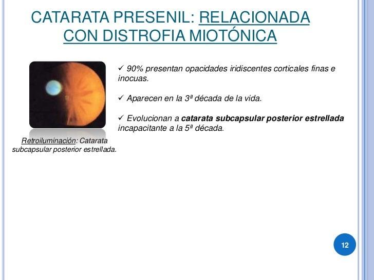 CATARATA PRESENIL: RELACIONADA          CON DISTROFIA MIOTÓNICA                                      90% presentan opacid...