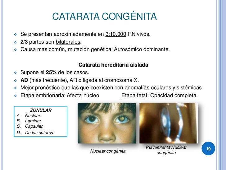 CATARATA CONGÉNITA     Se presentan aproximadamente en 3:10,000 RN vivos.       2/3 partes son bilaterales.       Causa ...