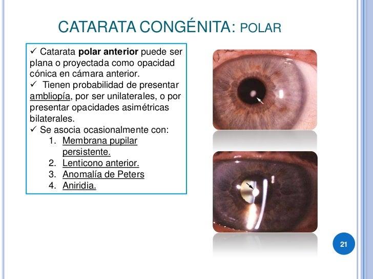 CATARATA CONGÉNITA: POLAR  Catarata polar anterior puede ser plana o proyectada como opacidad cónica en cámara anterior. ...