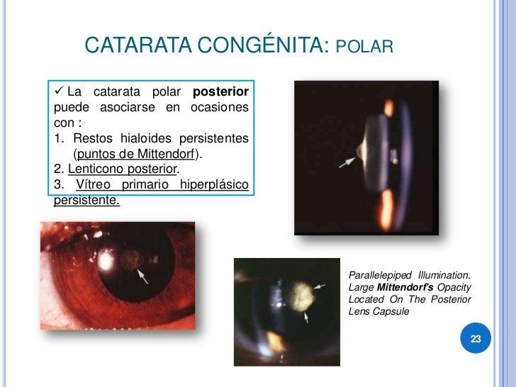 CATARATA CONGÉNITA: POLAR   La catarata polar posterior puede asociarse en ocasiones con : 1. Restos hialoides persistent...