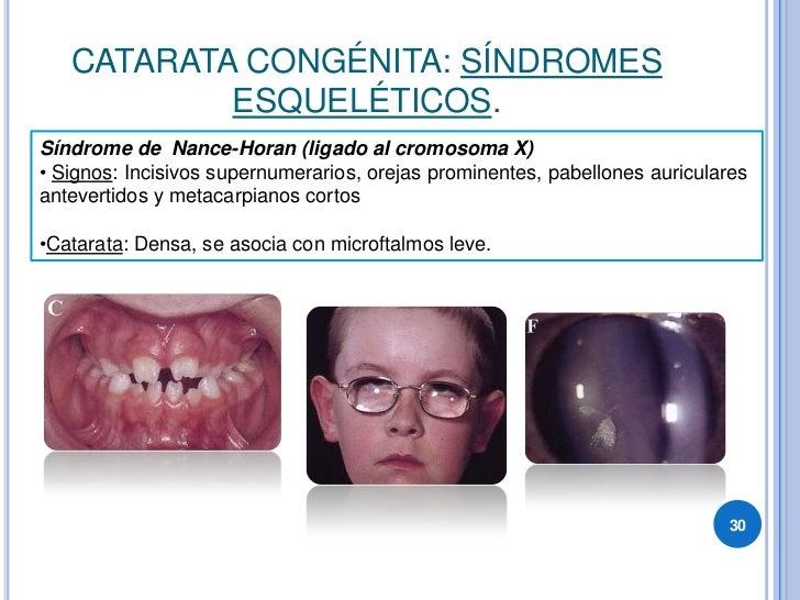 CATARATA CONGÉNITA: SÍNDROMES            ESQUELÉTICOS. Síndrome de Nance-Horan (ligado al cromosoma X) • Signos: Incisivos...