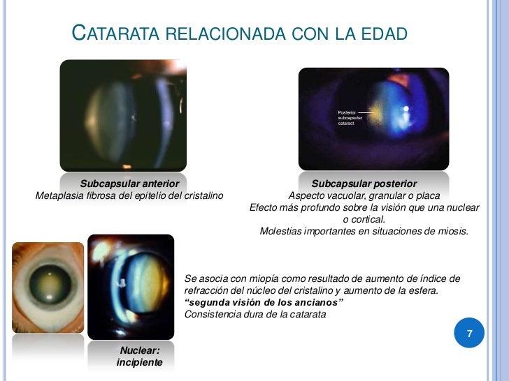 CATARATA RELACIONADA CON LA EDAD              Subcapsular anterior                                   Subcapsular posterior...