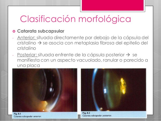 posterior subcapsular cataract and steroids