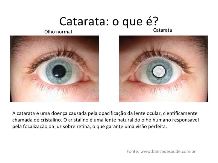 Catarata: o que é? Fonte: www.bancodesaude.com.br Olho normal Catarata A catarata é uma doença causada pela opacificação d...