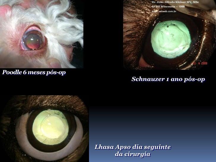 Dr. João Alfredo Kleiner MV, MSc<br />ACVO Wisconsin – 1998<br />www.vetweb.com.br<br />IMPLANTE DE LIOPASSO A PASSO<...