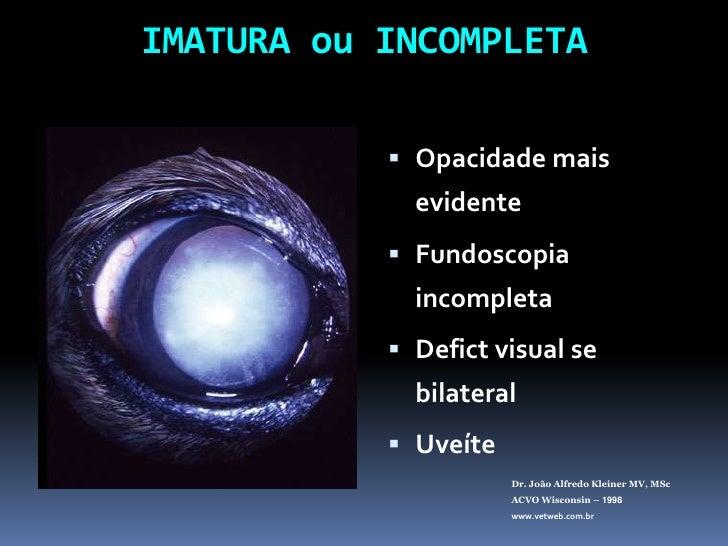 IMATURA ou INCOMPLETA<br />Opacidade mais evidente<br />Fundoscopia incompleta<br />Defictvisual se bilateral<br />Uveíte<...