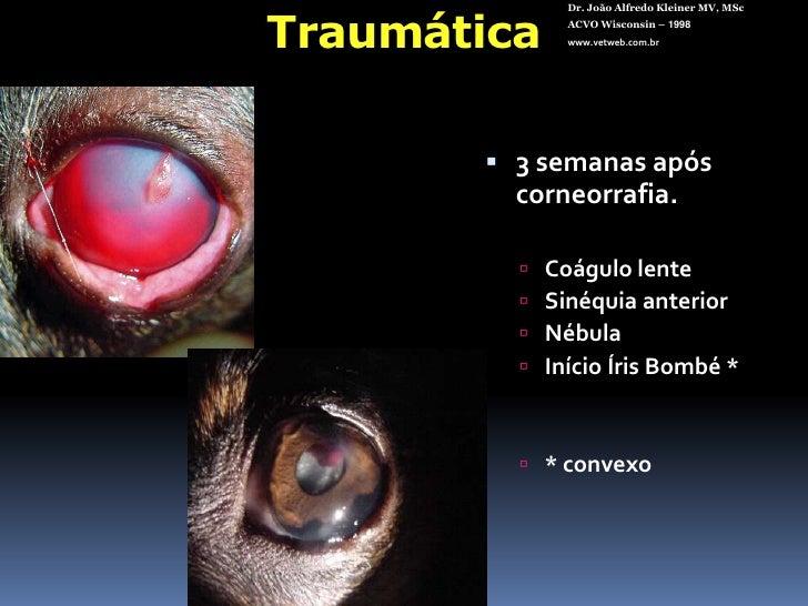 Tempo de evolução<br />Embrionária<br />Congênita / Hereditária<br />Juvenil<br />Senil<br />Adquirida<br />Dr. João Alfre...