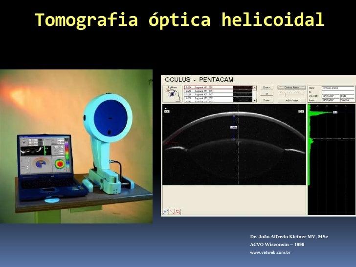 Dr. João Alfredo Kleiner MV, MSc<br />ACVO Wisconsin – 1998<br />www.vetweb.com.br<br />1º LIO moderna em humanos implanta...