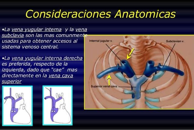 Cateteres Tecnicas Quirurgicas medicinaLOBOS