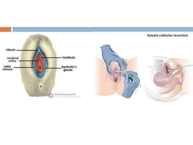 Catheter Use In Gynaecological Practice