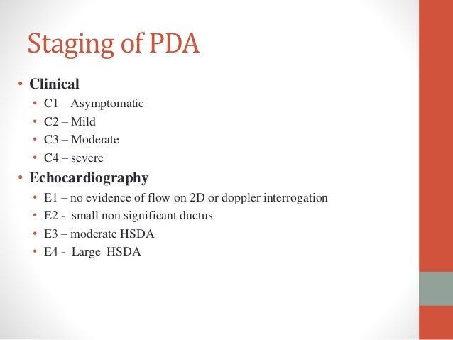 patent ductus arteriosus video