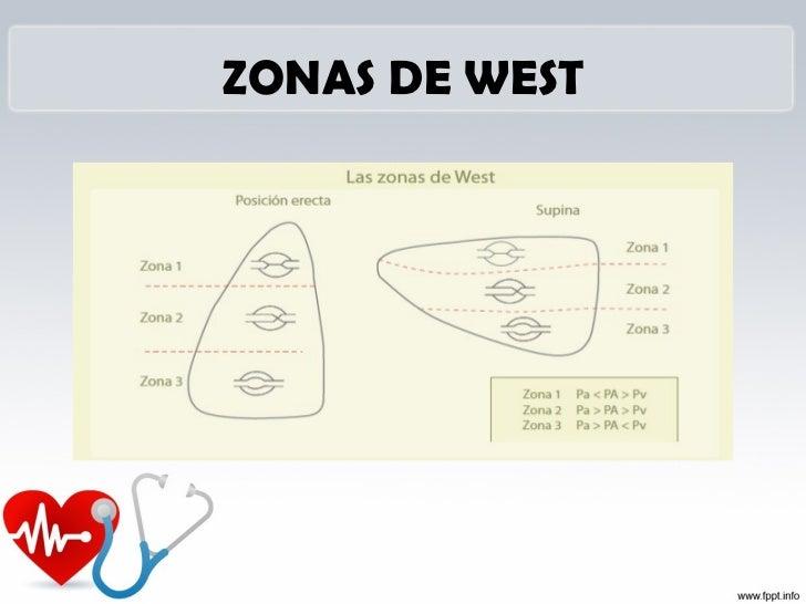 Vías o puertos del catéter de Swan-Ganz: