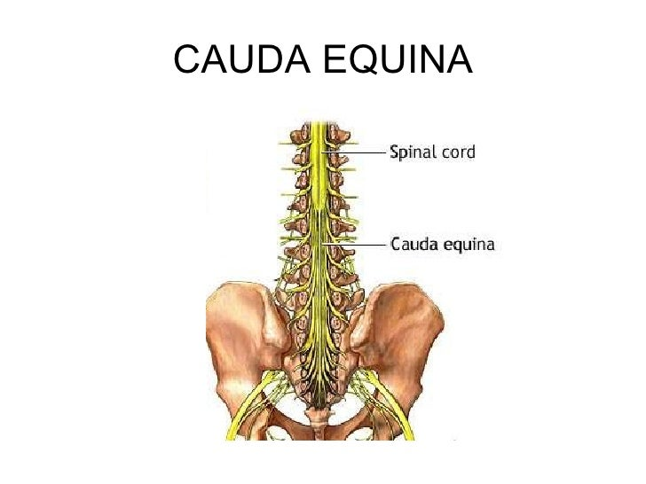 cauda equina syndrome, Human Body