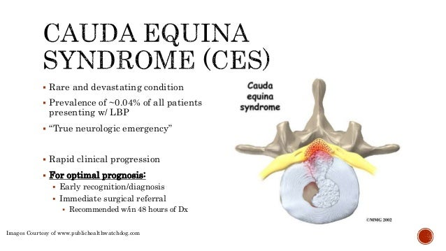 cauda-equina-syndrome-5-638?cb=1423659106, Human Body